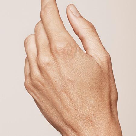 Ringiovanimento mani foto prima-dopo