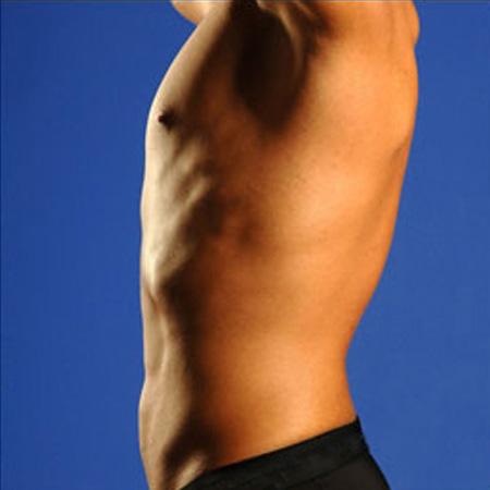 Microlipocavitazione addome e schiena foto risultati