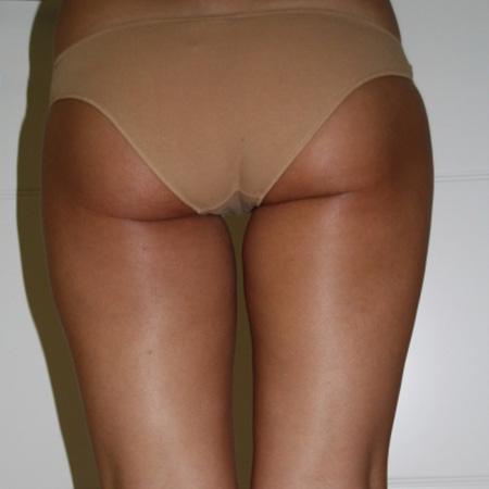 Rimodellamento corpo foto risultati