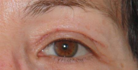 Laser blefaroplastica foto prima-dopo