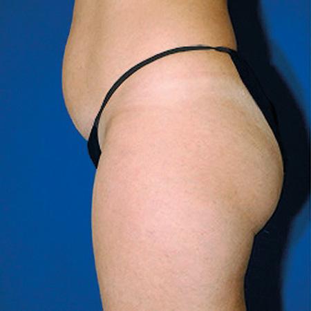 Microlipocavitazione pancia foto prima-dopo