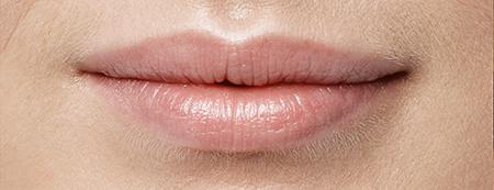 Filler labbra foto prima