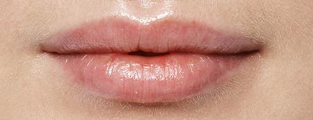 Filler labbra foto dopo