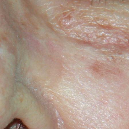 Laser iperpigmentazioni foto dopo