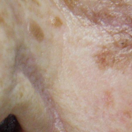 Laser iperpigmentazioni e macchie della pelle foto prima