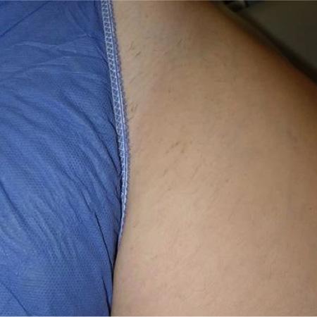 Laser depilazione foto dopo