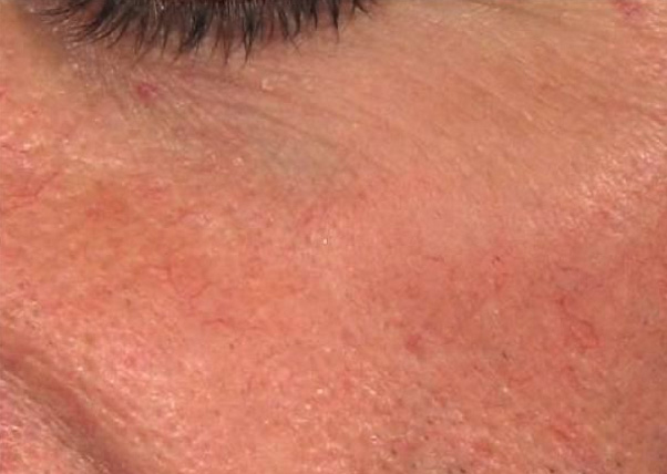 Laser cascolare capillari viso foto dopo