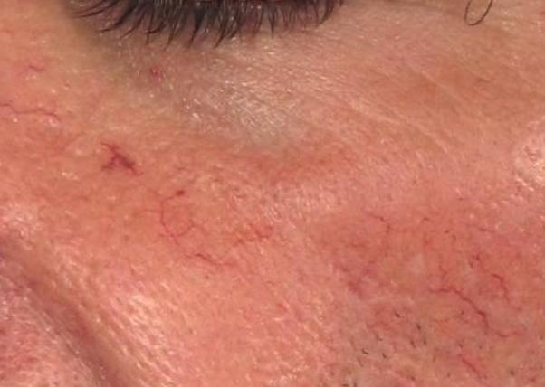 Laser cascolare capillari viso foto prima