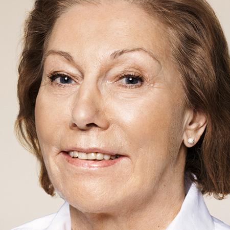 Ringiovanimento laser rughe viso foto dopo
