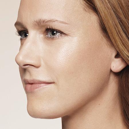 Ringiovanimento viso antirughe foto risultati