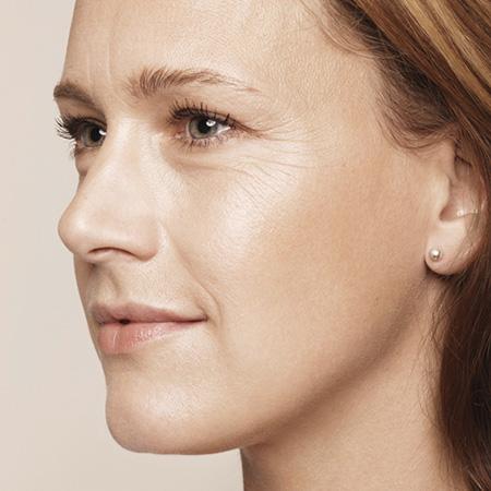 Ringiovanimento viso antirughe foto prima-dopo