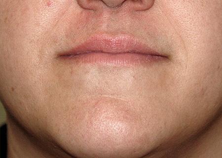 Laser epilazione baffi foto dopo