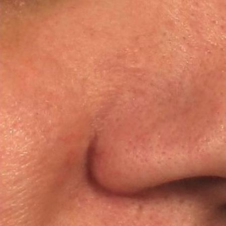 Laser vascolare teleangectasie viso foto dopo