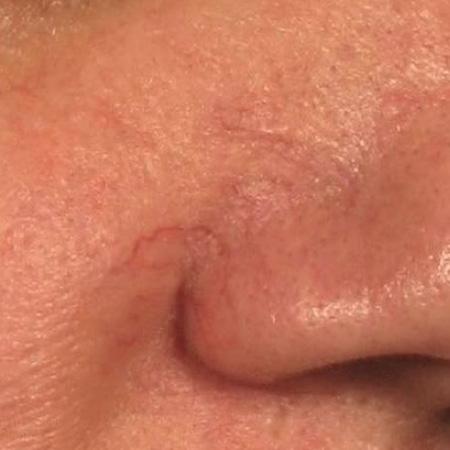 Laser teleangectasie viso foto prima