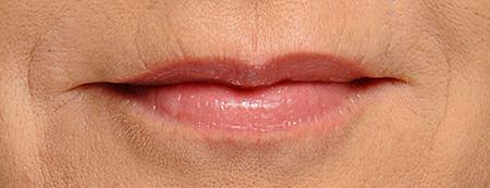 Trattamento codice a barre contorno labbra, foto risultati