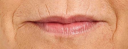 Trattamento codice a barre contorno labbra, foto prima dopo