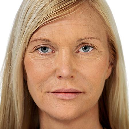 Trattamento invecchiamento cutaneo foto risultati