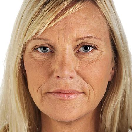 Trattamento invecchiamento cutaneo foto prima-dopo