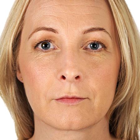 Ringiovanimento pelle viso foto risultati