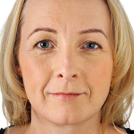 Ringiovanimento pelle viso foto prima-dopo