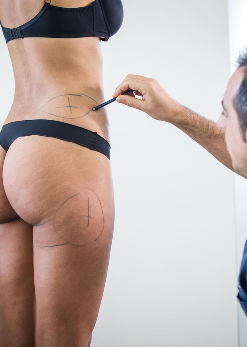 Chirurgia estetica a Treviso e Venezia