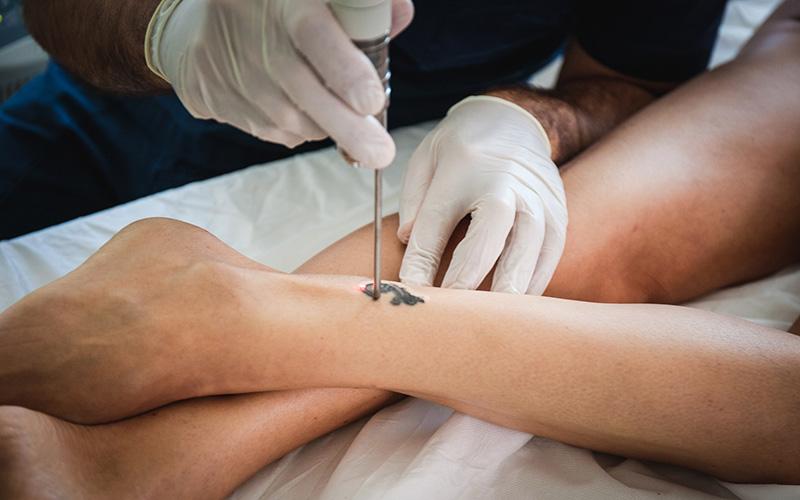 Rimozione tatuaggi laser