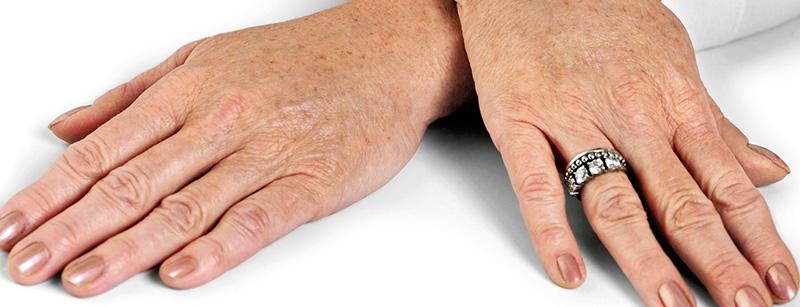 Lavvolgere per perdita di peso di gambe a varicosity