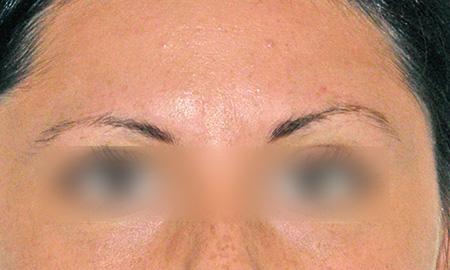 Dermopigmentazione sopracciglia foto prima