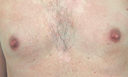 Dermopigmentazione microtatuaggio correttivo foto dopo