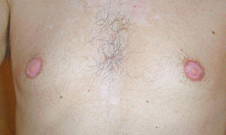 Dermopigmentazione microtatuaggio correttivo foto prima