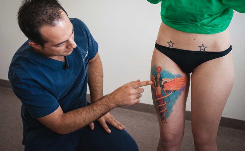 Rimozione laser tatuaggi colorati