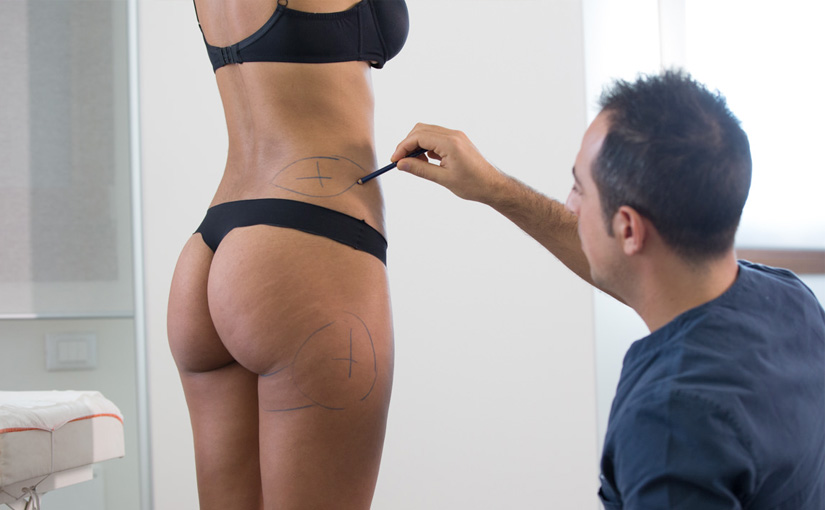 Body Shaping: senza chirurgia
